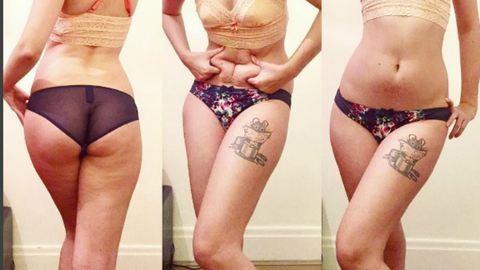 Anorexia: Ha a tükörbe néztem,  csak azt láttam, mennyire szörnyen nézek ki