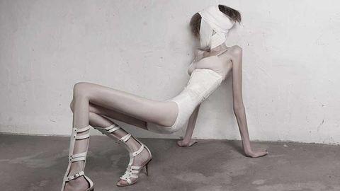 Erotikus fehérneműben mutatja meg magát az anorexiás lány