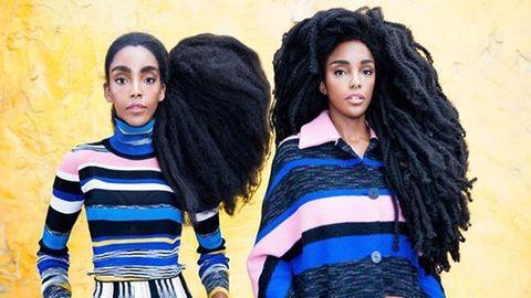 Régen cikizték, most imádják az elképesztő hajú ikerpárt
