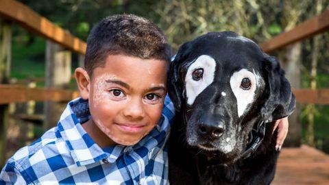 Önbizalmat nyert a kisfiú, miután találkozott a hasonló bőrbetegségben szenvedő kutyával