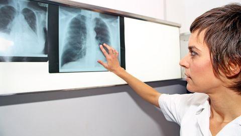 30 évet várni a helyes diagnózisra: ilyenek a ritka betegséggel élők mindennapjai