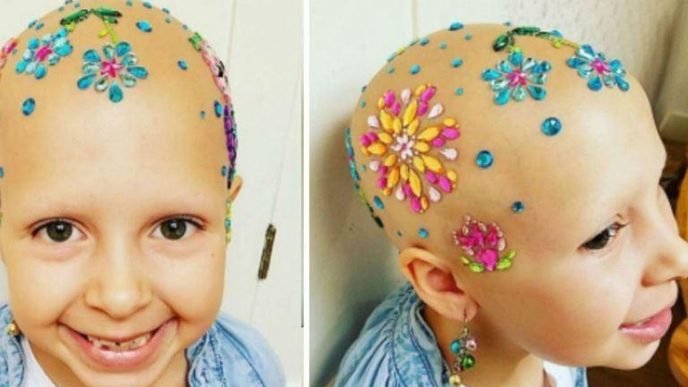 """Egy világ rajong a beteg kislány """"őrült frizurájáért"""""""