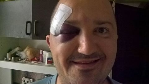 Megverték, mert a CEU mellett tüntetett