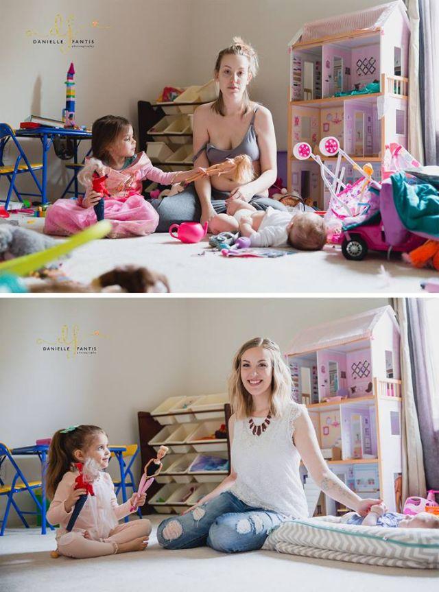Csak két fotó, ami tökéletesen megmutatja, milyen a szülés utáni depresszió valójában