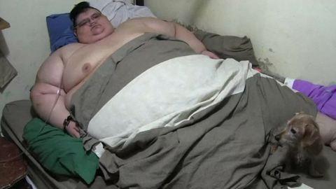Vizespohárnyira zsugorították a világ legkövérebb emberének gyomrát
