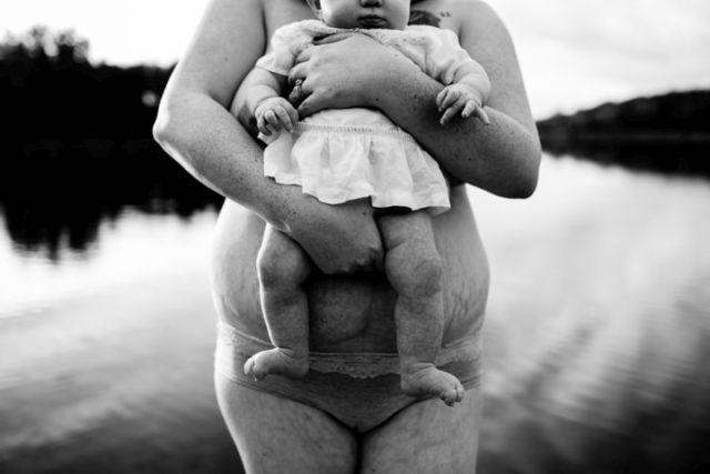 Őszinte képek a szülés utáni test igazi szépségéről