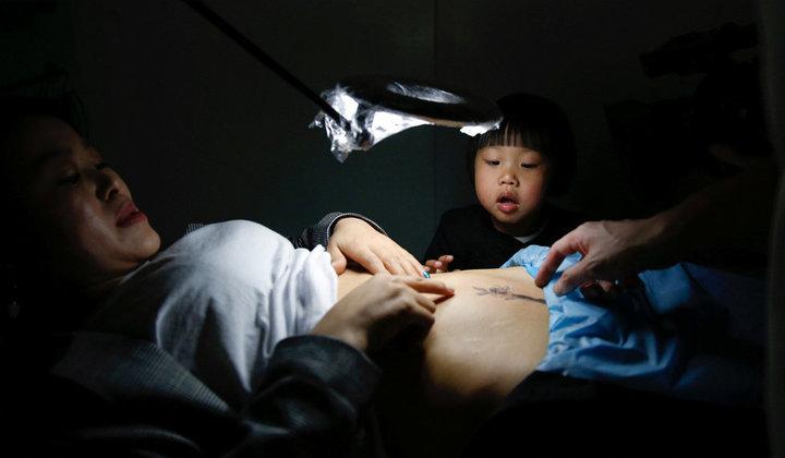 A művész ingyen készít tetoválást a császáros anyukáknak