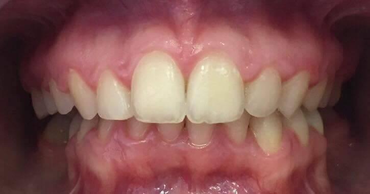 Levétel utáni fogsorom