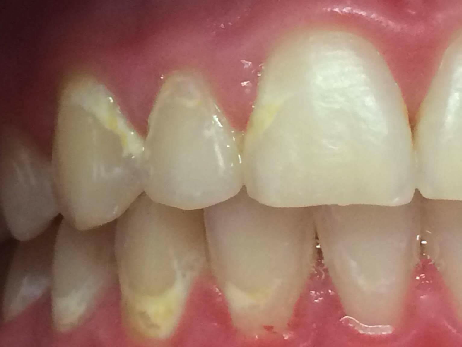 Felnőttkori fogszabályozás: vége a nyuszi fogas éveknek – előtte-utána fotók