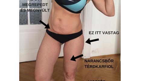 Minek kell a tökéletes test nyárra? Miért ne lenne jó az átlagos?!