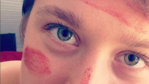 Nem, az ott nem piros festék ennek a lánynak az arcán