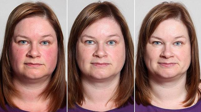 vörös foltok az arcon alkoholfogyasztás után.)