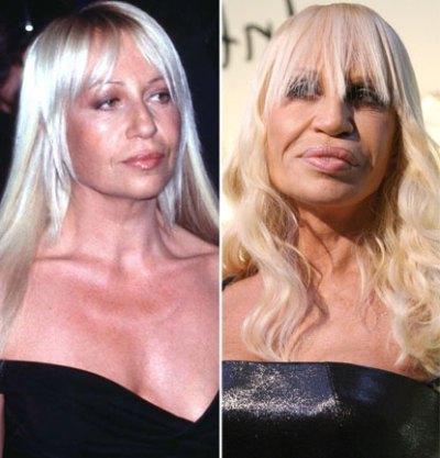 Sokkoló plasztikai műtétek Hollywoodból - fotók