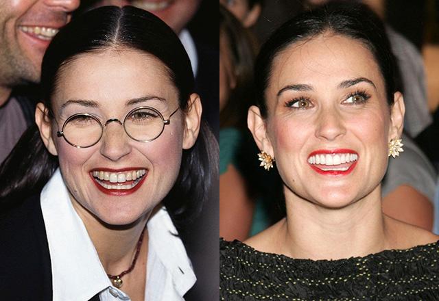 Amikor sárgából világító fehér lesz a hollywoodi sztárok fogsora - galéria