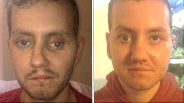 Stephen Power a műtét előtt (b) és után (j), Forrás: bbc.com
