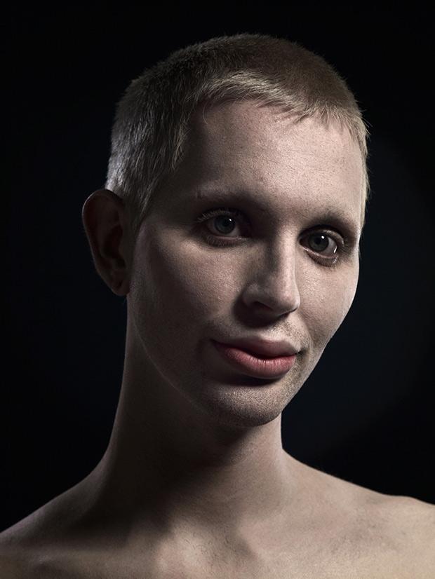Extrém plasztika: a szépség új formája