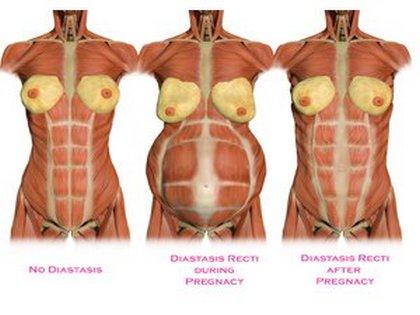 Ilyen lett a hasam a műtét után - összefoglaló