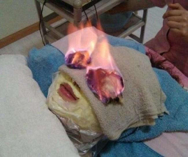 Bizarr kezelés: törölközőt égetnek az arcodon