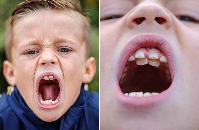 Dupla fogsora van egy kisfiúnak