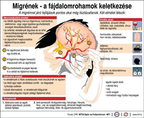 Komoly összefüggés lehet a migrén és a stressz között