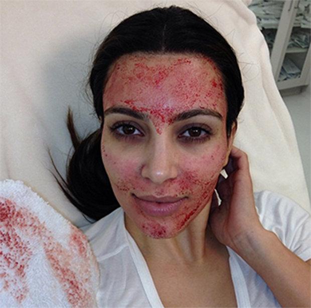 A Drakula-terápia is szerepel a szépséglistáján