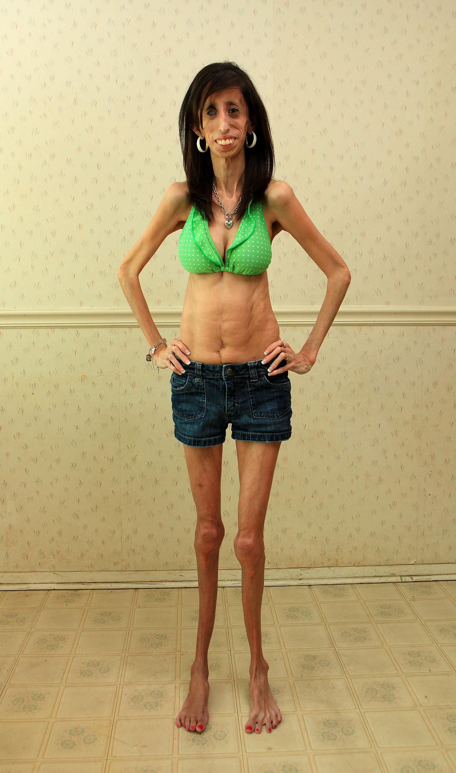 Bekeményített a világ legrondább nője