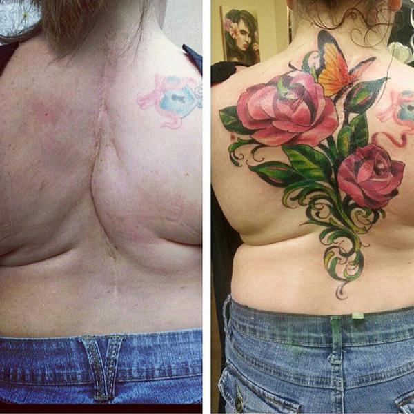 15 tetoválás, amit nem divatból csináltattak - galéria