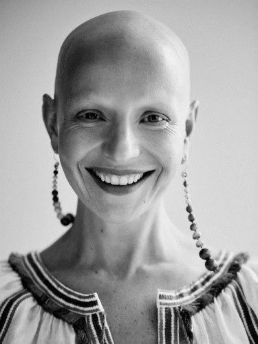 6 nő meséli el, hogyan veszítette el a haját - megható történetek