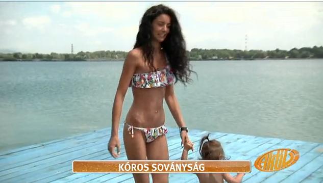 Anorexiájáról beszélt a 42 kilós Szorcsik H. Viki