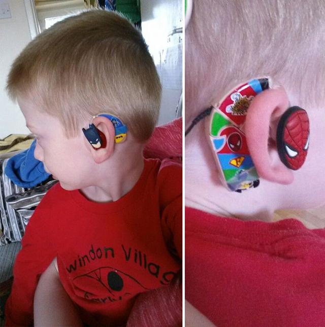 Szuperhősökkel dekorálja a fia hallókészülékét az anya - fotók