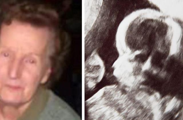 Ultrahangfelvételen tűnt fel a halott nagyi arca - fotó