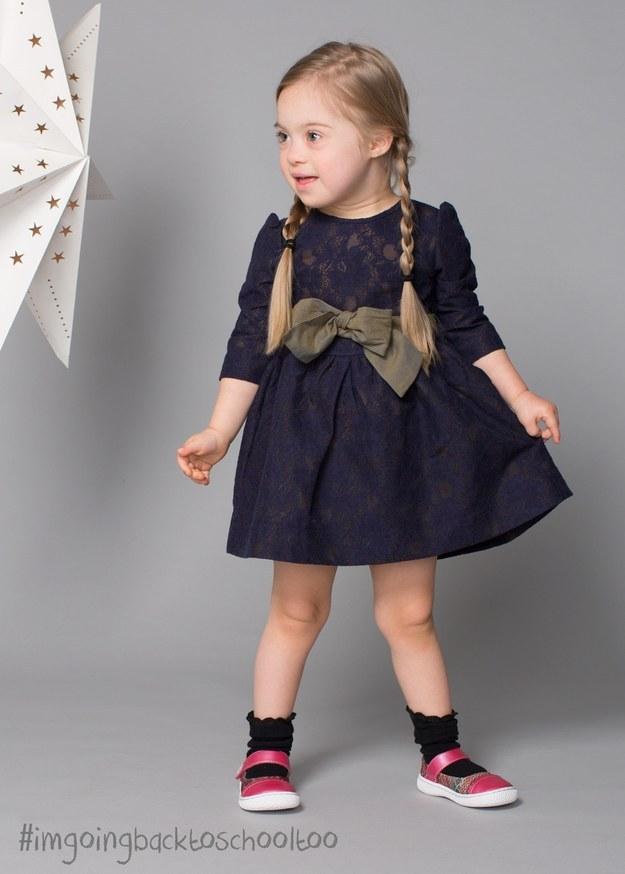 Csodás modellkarrier előtt egy 4 éves Down-os kislány
