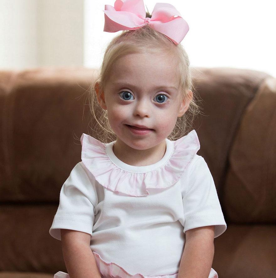 dfaebf2078 Modellversenyt nyert a kétéves Down-szindrómás kislány – tündéri ...