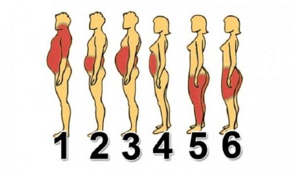 Milyen típusú elhízásból hogyan lehet lefogyni?