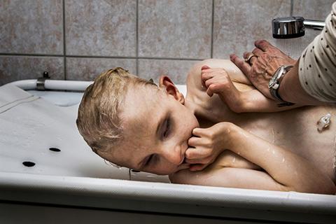 Megható fotók készültek a fogyatékos kisfiúról