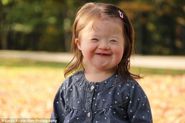 Szívszorító: A beteg kislány először látja magát egy képen