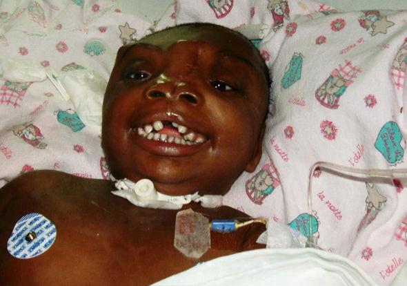 Elképesztő: 3D nyomtatással hozták helyre a lyukat a kislány fején