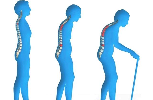 Ismerd fel időben a csontritkulást – ezek a jelek időseknél és gyerekeknél