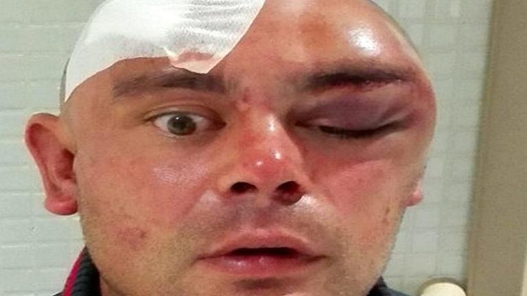 Kannibáltámadás áldozata lett a brit dj Ibizán
