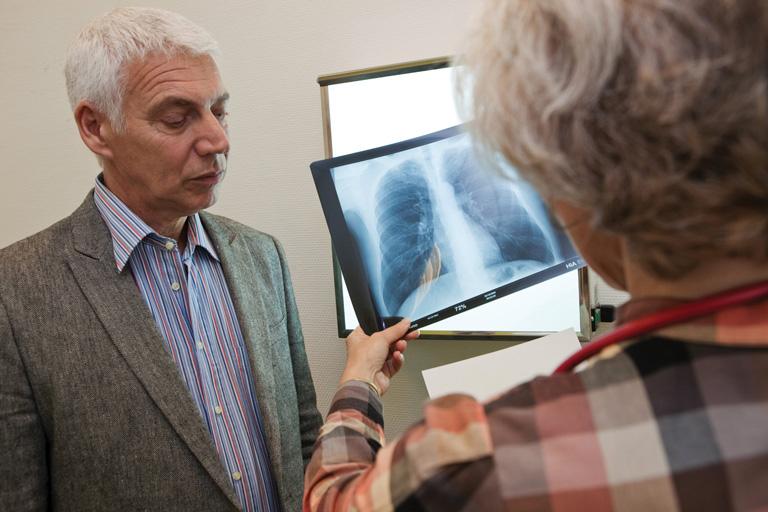 Egyelőre nincs gyógymód erre a tüdőbetegségre – Idiopátiás tüdőfibrózis