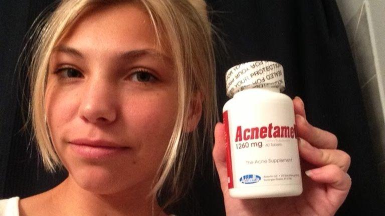 Okozhat a B12-vitamin pattanásokat?
