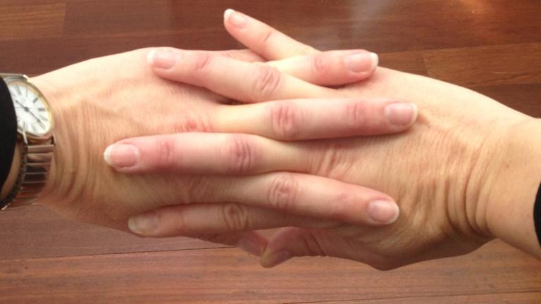 Ha ropogtatod az ujjaid, tényleg beteg leszel?