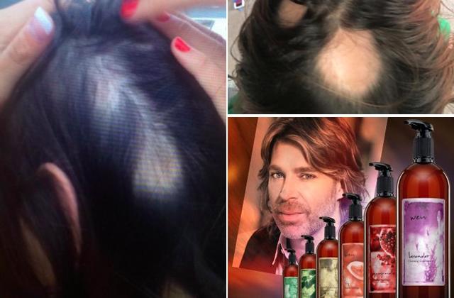 Megkopaszodtak a nők a sztárfodrász hajápolóitól - fotók