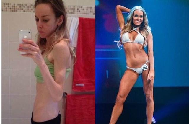 Anorexiásan és a bikini modell versenyen