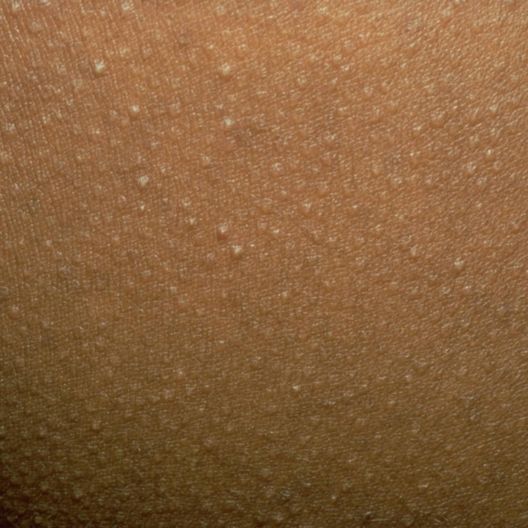 Kinövések a testen - elmondjuk, melyik micsoda