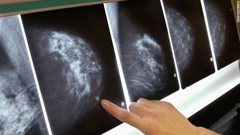 A mellrák a leggyakoribb rák a nők körében