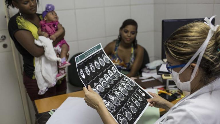 Erős a gyanú, hogy van kapcsolat a zikavírus és a kisfejűség között