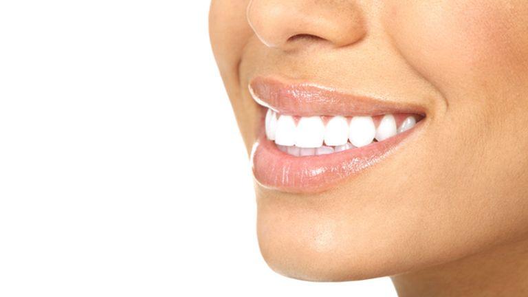 Házilag is elérhető a fehér fogsor