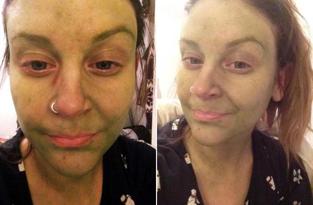 Zöld lett a bőre a barnítókrémtől