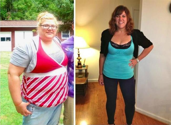 legcsodálatosabb fogyás előtte és utána hogyan lehet elveszíteni a quad zsírt